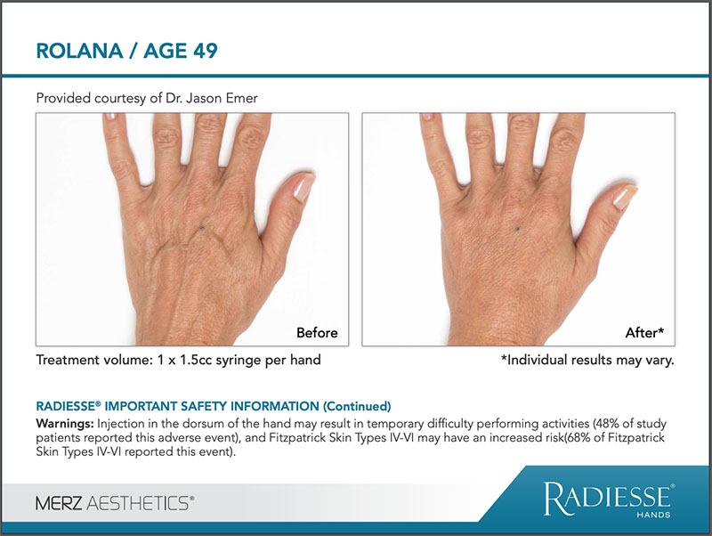 RADIESSE® Hand Rejuvenation before and after comparison image - ROLANA age 49