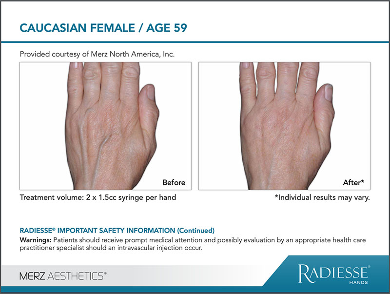 RADIESSE® Hand Rejuvenation before and after comparison image - CAUCASIAN FEMALE age 59